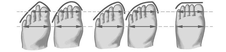 Die verschiedenen Fußformen