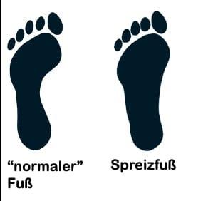 """Spreizfuß vs. """"normaler"""" Fuß"""