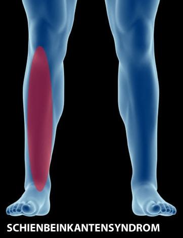 Shin Splints - Das Schienbeinkantensyndrom
